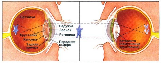 как остановить катаракту на начальной стадии