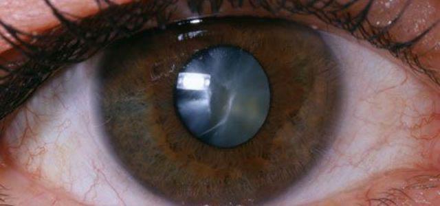 начальная старческая катаракта