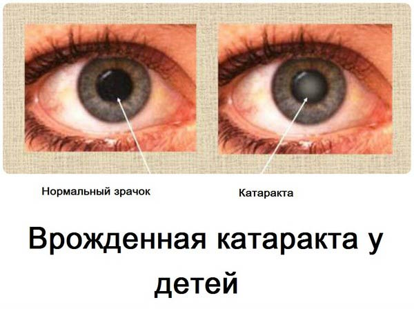нормальный зрачок и катаракта