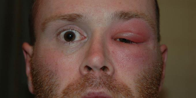 абсцесс глазницы