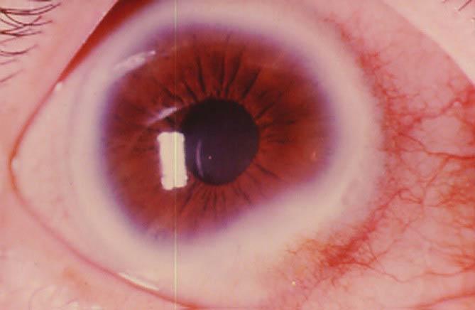 как выглядит патология роговицы глаза