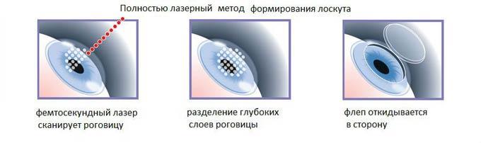 фемтосекундный лазер