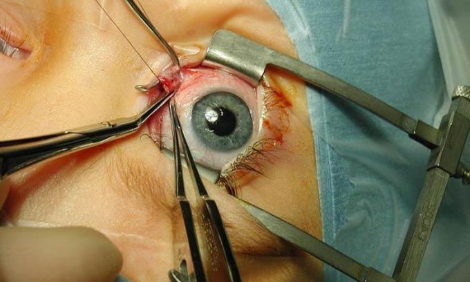 реабилитация после операции на глазах