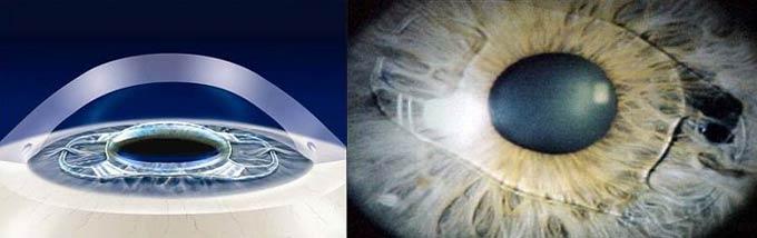 виды глазных операций