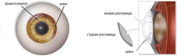 послойная кератопластика
