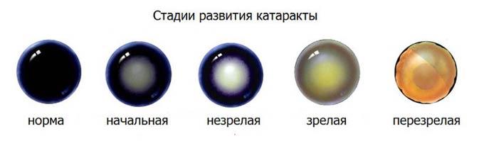 стадии старческой катаракты