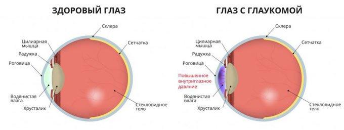 схема глаза с глаукомой