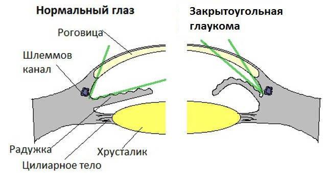 лечение закрытоугольной глаукомы