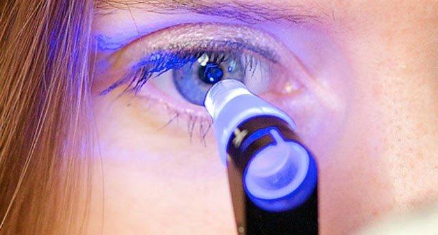 закрытоугольная форма глаукомы