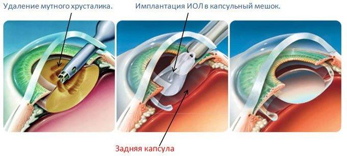 операция по удалению катаракты с заменой хрусталика