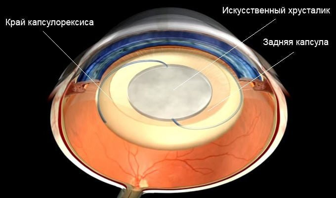 удаление катаракты с заменой хрусталика