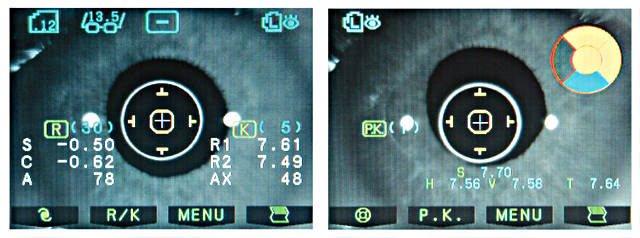 диагностика роговицы глаза