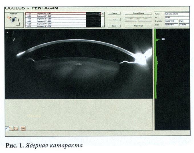 диагностика ядерной катаракты