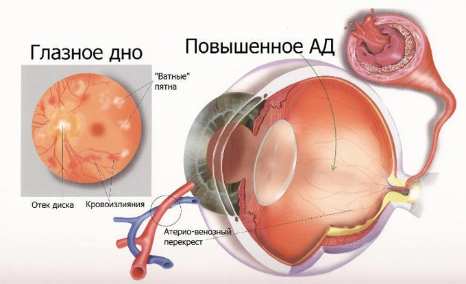 глазное дно и повышенное давление
