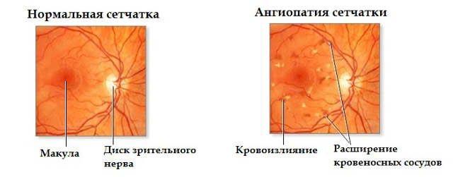 ангиопатия сосудов сетчатки