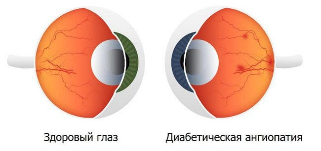 Ангиопатия сетчатки глаз травматические thumbnail