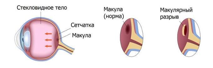 макулярный разрыв сетчатки