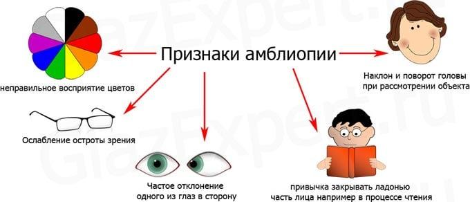 признаки амблиопии