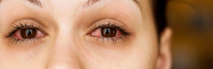 симптомы ретробульбарного неврита