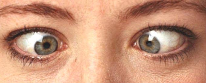 глаза вкучу