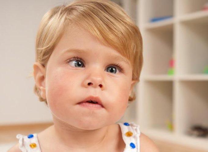 непостоянное сходящееся косоглазие у детей