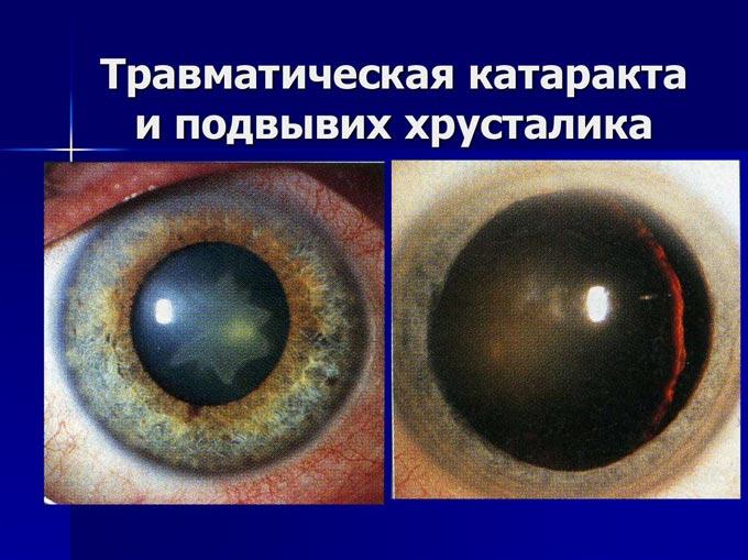 лечение травматической катаракты