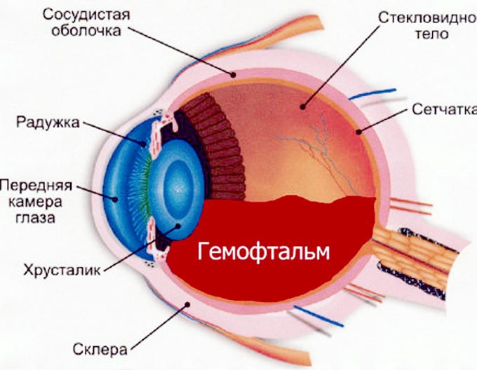 частичный гемофтальм глаза