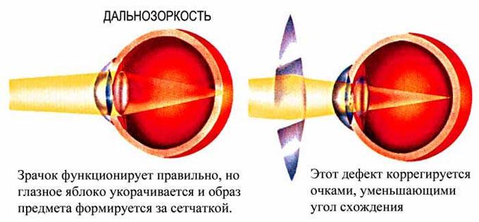 гиперметропия слабой степени