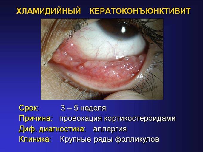 хламидийный кератоконъюнктивит