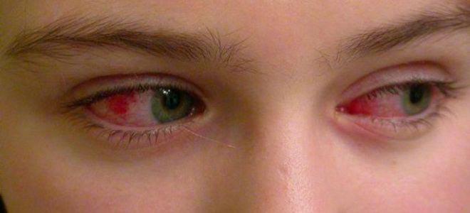 красные глаза при конъюктивите