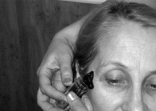гирудотерапия при глаукоме