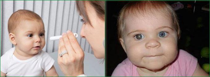 катаракта у новорожденных