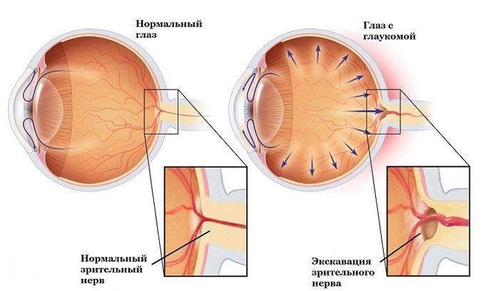 строение глаза с глаукомой