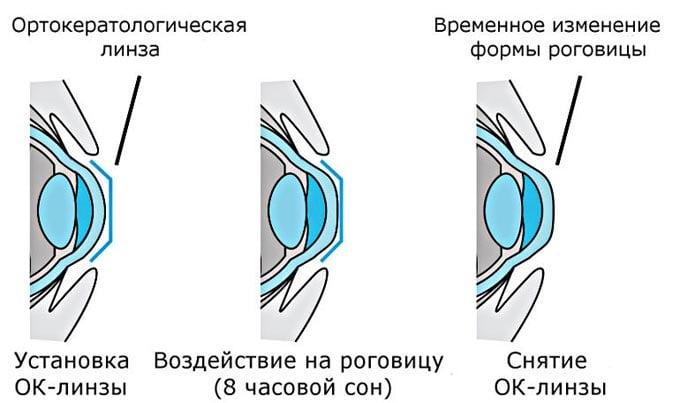изменение формы роговицы