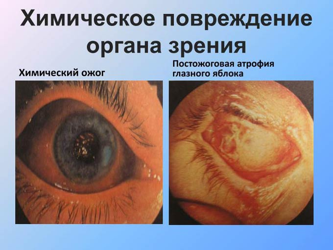 капли от химического ожога глаз