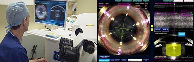 лазерное лечение катаракты