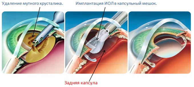 имплантация ИОЛ