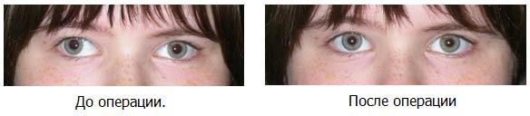 до и после операции на косоглазие