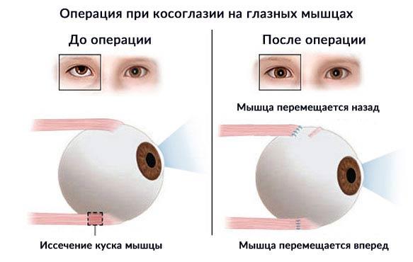 операция на глазных мышцах