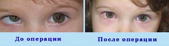 до и после операции у ребенка
