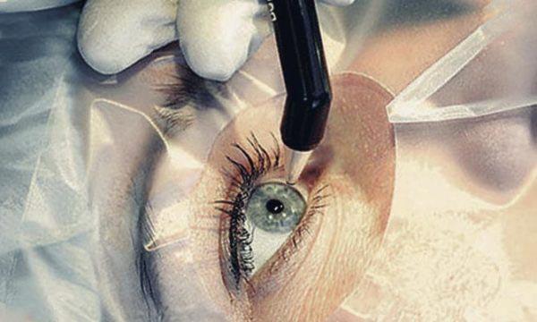фемтолазерная хирургия катаракты