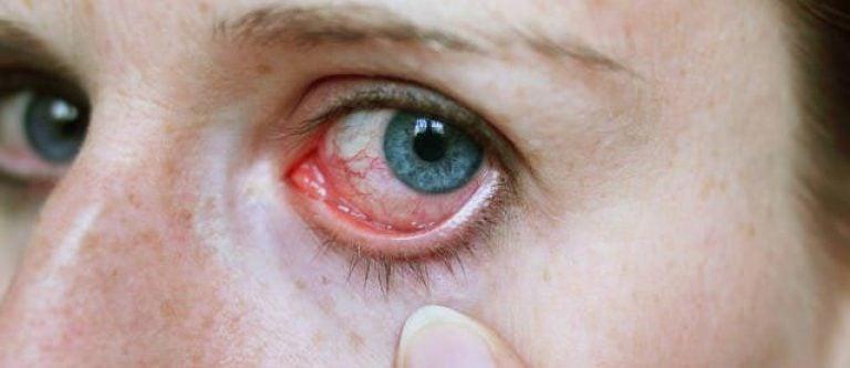 Конъюнктивит иммунитет