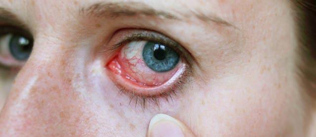 как лечить вирусный конъюнктивит