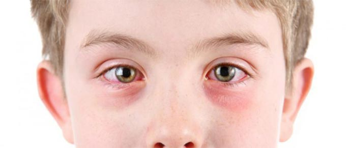 вирусный конъюктивит у детей