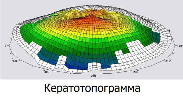 кератотопограмма