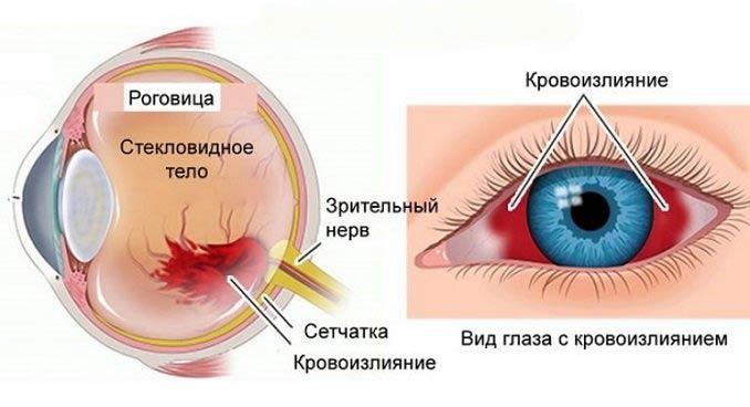 вид глаза с кровоизлиянием
