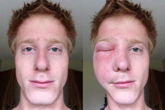 сильно опух глаз после укуса