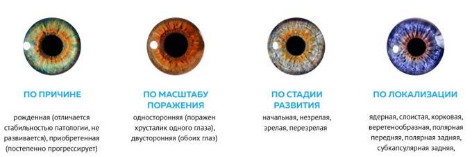 разновидности катаракты