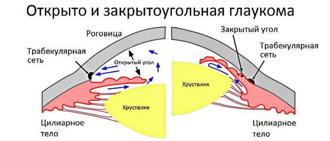 схема видов глаукомы