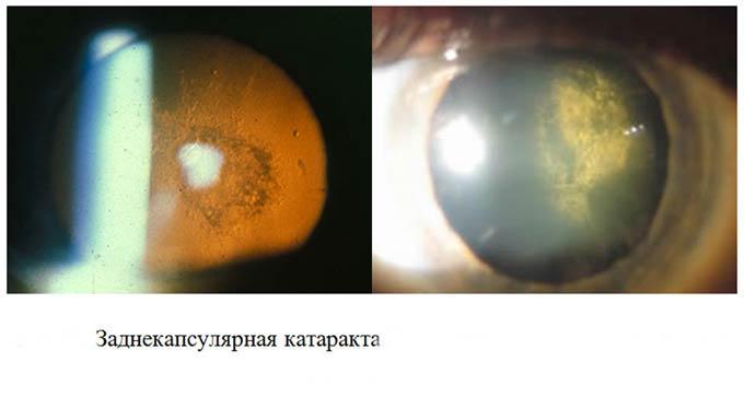 заднекапсулярная катаракта
